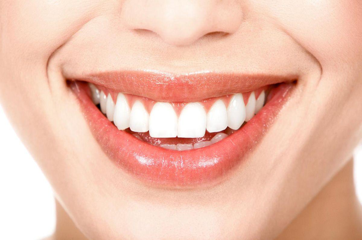 remedii naturiste albirea dintilor
